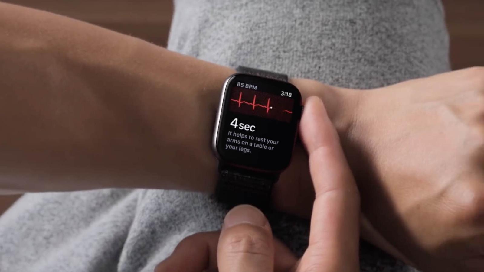 Elektrokardiogram dari Apple Watch diluluskan untuk digunakan di Brazil
